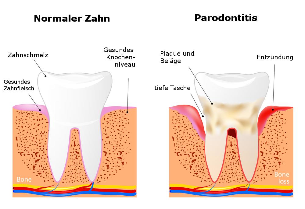 Parodontitis Vorbeugen Amp Behandeln Dr Zastrow Amp Kollegen