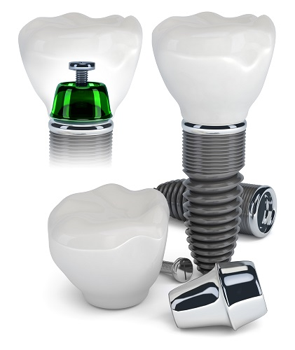Aufbau Zahnimplantat