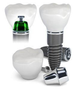 Zahnimplantate - Zahnersatz